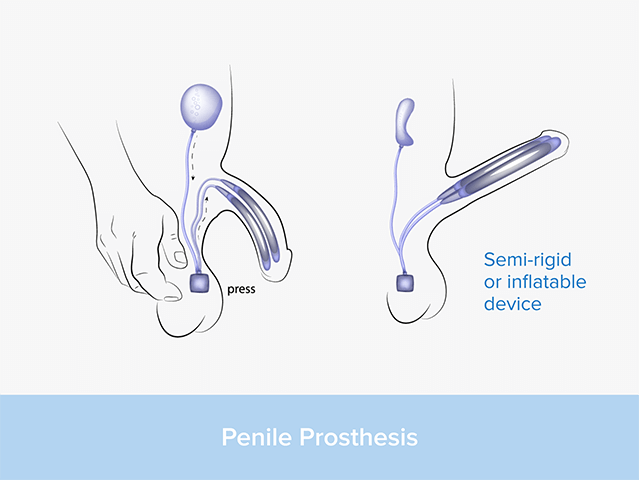 an illustration of a penile prosthetic for erectile dysfunction