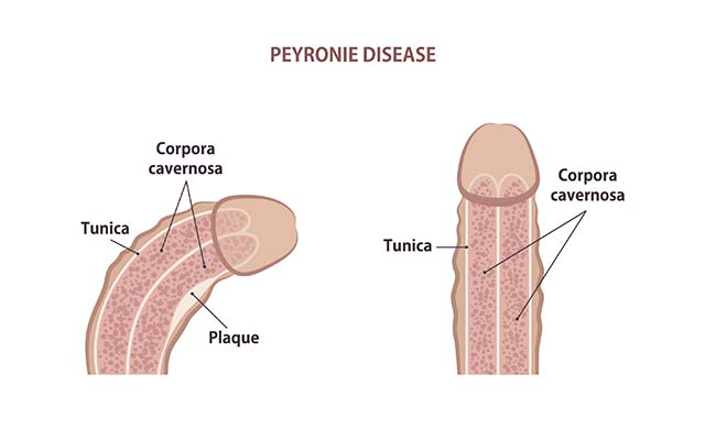 An illustration of a penis with Peyronie's diseases